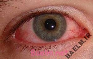 مصرف کنندگان حشیش چشمانشان قرمز میشود