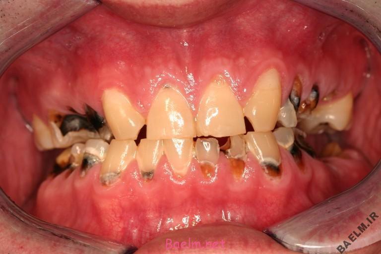 چه عواملي باعث خرابي دندان ها ميشود؟