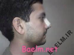 رواج عمل جراحی زیبایی بینی در مردان