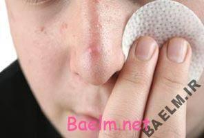 4 روش برای از بین بردن جوش صورت