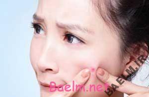 قطره استریل چشمی درمانی برای جوش