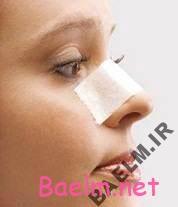 چگونگی مراقبت از بینی بعد از عمل جراحی زیبایی