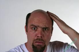 پوست و مو | علل ريزش مو در مردان