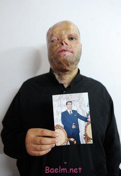 گفتگو با مردی که به اشتباه به صورتش اسید ریخته شد