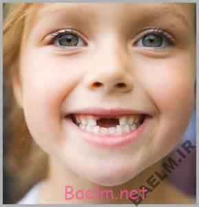 صدمات دندانی کودک,شکستن دندان بر اثر ضربه,شکستن دندان جلو کودکان