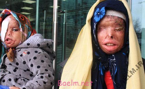 تصاویر ناراحت کننده صورت اسید پاشی شده یک مادر و دختر