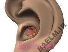 بيماري شناسي   بسته شدن مجرای گوش توسط موم گوش