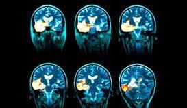آنسفالیت چیست,تشخیص آنسفالیت,درمان آنسفالیت,عوارض و علائم آنسفالیت