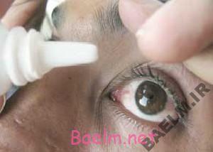 دارونامه | موارد مصرف و عوارض داروی کارباکول ( چشمی)
