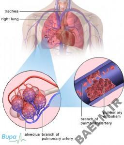 pulmonary_embolism