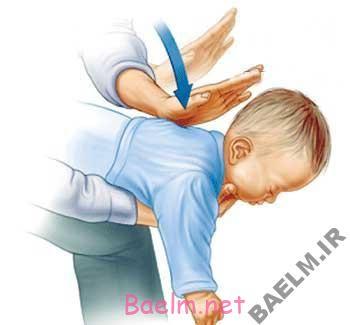 آموزش پزشکی | با گیرکردن اجسام در گلوی بچه ها چکار کنیم؟