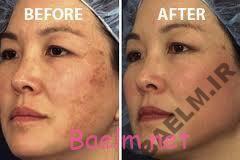 درمانهای جدید لیزری در درمان لک های پوست صورت(ملاسما)