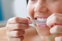 سلامت دندان   سفید شدن دندان با استفاده از جرم گیر خانگی