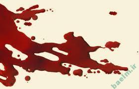 تعبیر خواب   تعبیر دیدن خون در خواب