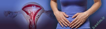 بيماري شناسي    اندومتریوز (Endometriosis)،نشانه ها ،علل و راههاي درمان بيماري