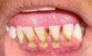 دهان و دندان   جرم گيري چيست و چه زمان نياز به جرم گيري دندان داريم ؟