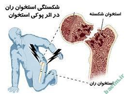 پزشکی | آشنایی با علائم و نشانه های بیماری پوکی استخوان