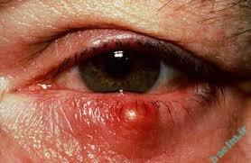شناخت بیماریها | آشنایی با بیماری گل مژه و شالازیون
