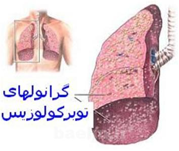 پزشکی   آشنایی با علائم و نشانه های بیماری سل