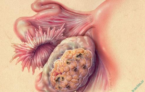 بیماریها | علل،علائم و راههای تشخیص و درمان سرطان تخمدان