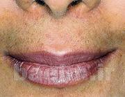 پوست و مو | علائم مردانه شدن خانم ها و عوارض پر مویی