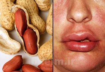 تغذيه | آلرژي يا حساسيت هاي غذايي چگونه درمان ميشود ؟