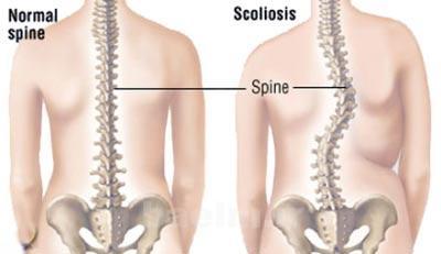 پزشكي   اسکولیوز ، علل ،عوارض و راههاي درمان بيماري