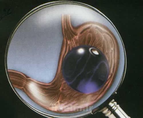 پزشکی | واقعيت هایی در مورد بالون گذاري معده