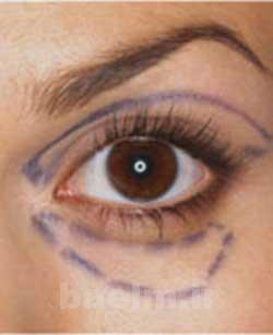 افتادگی پلک ها,جلوگیری از افتادگی پلک ها,روش های جوانسازی پوست