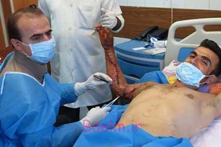 حوادث | عملی حیرت آور و نادر در بیمارستان تبریز
