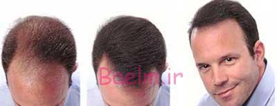 پوست و مو | ریزش موهای ارثی قابل درمان است