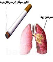 پزشكي | عوارض مصرف دخانيات بر سلامت افراد سيگاري