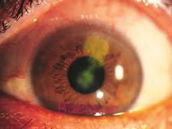 پزشكي | آشنايي با ويروس هايي كه به چشمان شما حمله ميكنند