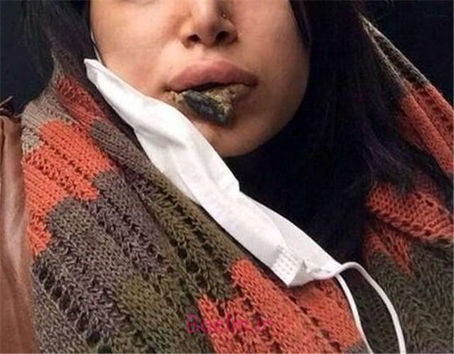 عکس دلخراش عمل ناموفق پروتز روی لب دختر ایرانی