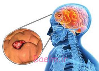 پزشكي   آشنايي با علائم رايج و اوليه تومور مغزي