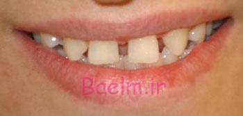 بهداشت دندان   روش هايي براي از بين بردن فاصله بين دندان ها