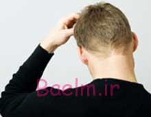 پوست و مو   ساده ترین روش های تسکین دهنده ی خارش پوست سر