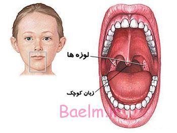 پزشكي | اوولیت یا تورم زبان کوچک ، دلايل ، علائم و راههاي درمان بيماري