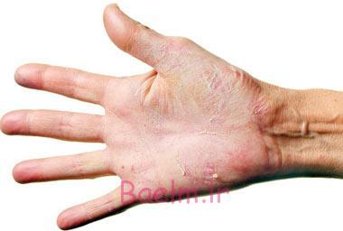 اگزما,پیشگیری از اگزما,درمان اگزما