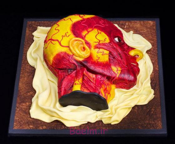 بیشترین اخلال در کیک سر انسان توسط آشپزخانه سحر را
