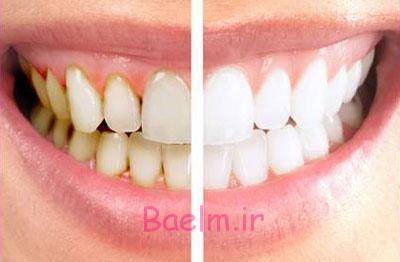 دندان پزشکی   آشنایی با باورهای غلط درباره جرم گیری دندان ها