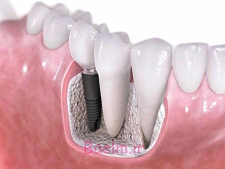 پزشکی | درباره عمل جراحی ایمپلنتهای دندانی بیشتر بدانیم