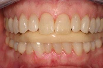 دندانقروچه باعث شکستگی، شلشدگی و افتادن دندانها میشود