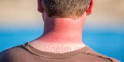بهداشت پوست | روش هایی برای بهبود سریع آفتاب سوختگی