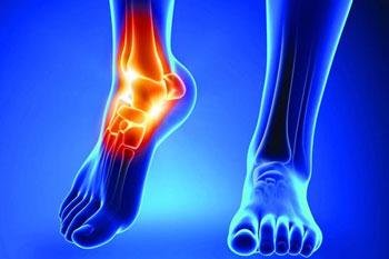 پزشکی | توصیه هایی برای داشتن مفاصل سالم و بدون درد