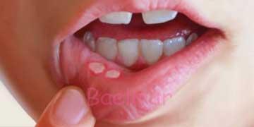 درمان خانگی و پیشگیری های اولیه از زخم های دهانی کودک