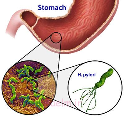 Food useful to deal with stomach ulcers, Helicobacter
