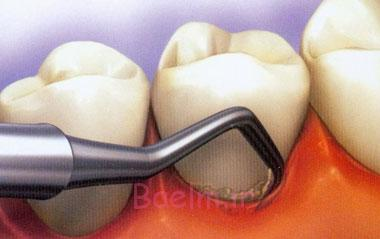 دندان,پوسیدگی دندان, علت لق شدن دندان