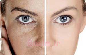 روش های بستن منافذ باز پوست