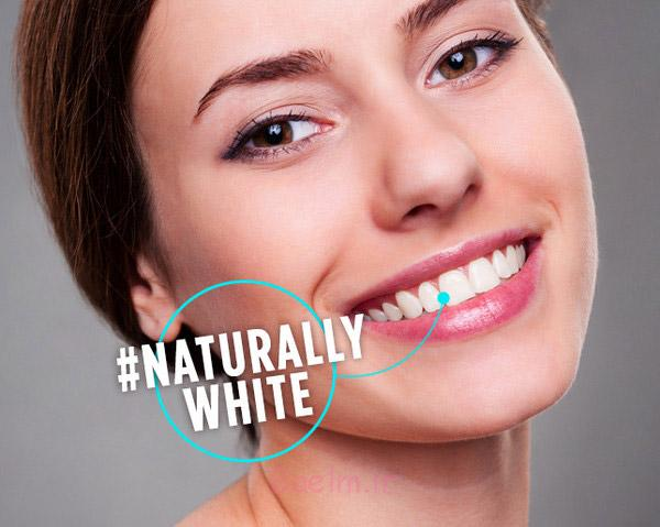 روش های خانگی برای سفید کردن دندان ها | دندانپزشکی